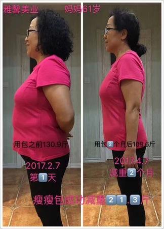 疗程减重21.3斤,0反弹